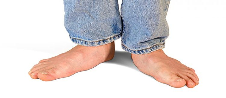 How at home to cure a transverse flatfoot?