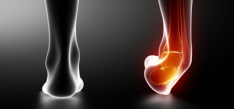 How quickly to cure ankle sprain