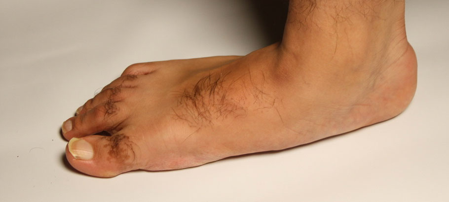flat feet pain treatment