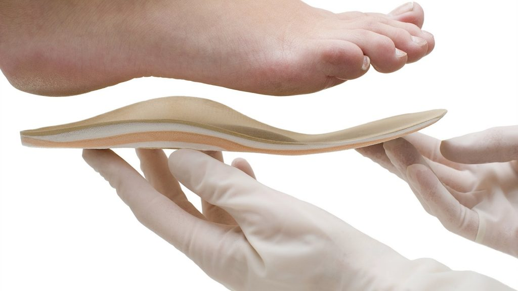 treatment of flat feet
